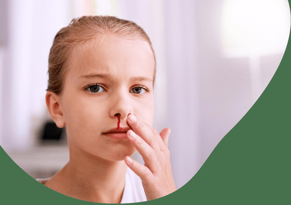 nosebleed-homepage
